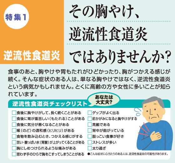 逆流 性 食道 炎 痛み 逆流性食道炎を予防する10のポイントと逆流性胃腸炎の症状セルフチェ...