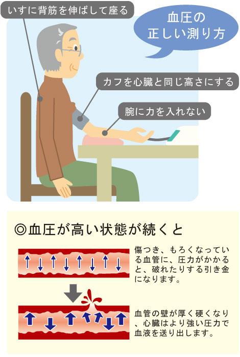 【血圧の正しい測り方】1.いすに背筋を伸ばして座る 2.カフを心臓と同じ高さにする 2.腕に力を入れない ◎血圧が高い状態が続くと⇒傷つき、もろくなっている血管に、圧力がかかると、破れたりする引き金になります。⇒血管の壁が厚く硬くなり、心臓はより強い圧力で血液を送り出します。